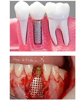 precio de implante dental en mexico